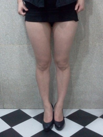 Thigh mini Liposuction | Korea | Before