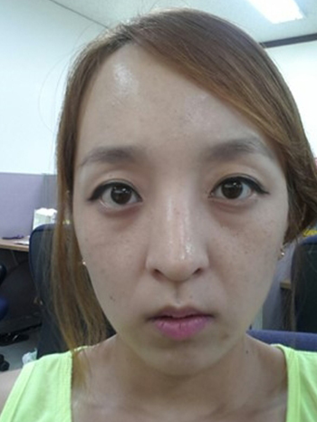 Dermal filler and BTX | Korea | Before